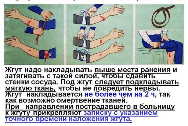 Правила наложения жгута: school.xvatit.com/index.php?title=Первая_помощь_при...